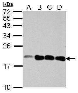 NCALD Antibody (PA5-31832) in Western Blot