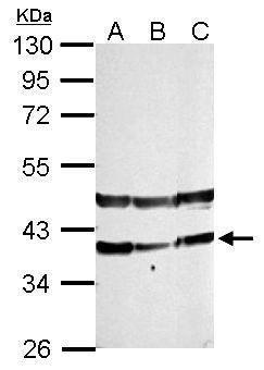 PHYHIP Antibody (PA5-31835) in Western Blot