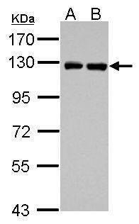 PITRM1 Antibody (PA5-31836) in Western Blot