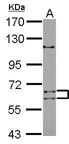 TENR Antibody (PA5-31845)