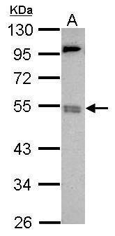 BRD9 Antibody (PA5-31847) in Western Blot