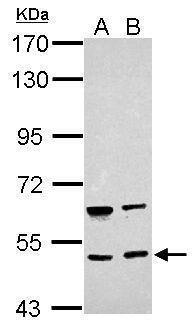 BRUNOL4 Antibody (PA5-31849) in Western Blot