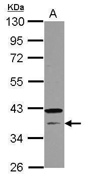 CNTD1 Antibody (PA5-31850) in Western Blot