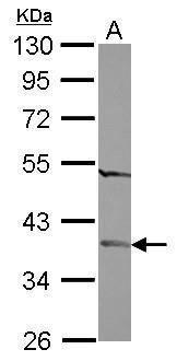 CGI-62 Antibody (PA5-31854) in Western Blot