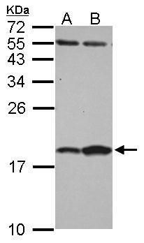 FABP7 Antibody (PA5-31864)