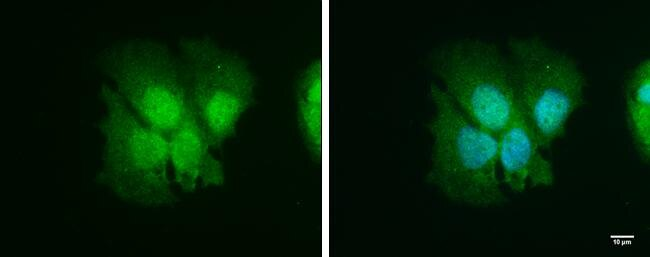 ISG15 Antibody (PA5-31865) in Immunofluorescence