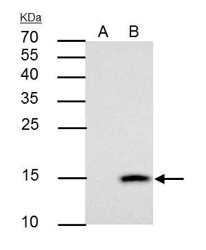 Galectin 7 Antibody (PA5-31866) in Immunoprecipitation