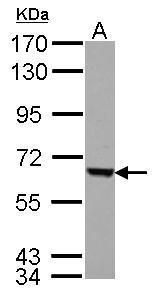 FEM1C Antibody (PA5-31869) in Western Blot