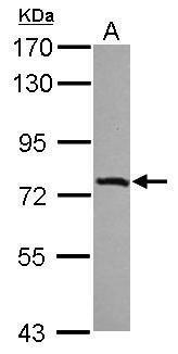 IL17RD Antibody (PA5-31871) in Western Blot