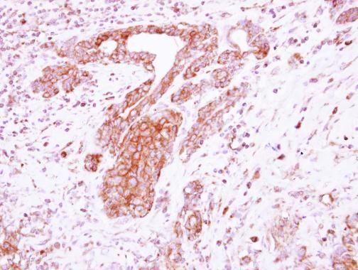 LRRC4C Antibody (PA5-31873) in Immunohistochemistry (Paraffin)