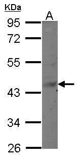 MAGEB6 Antibody (PA5-31874) in Western Blot