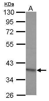 RG9MTD2 Antibody (PA5-31889) in Western Blot
