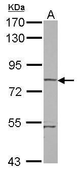 RhoBTB1 Antibody (PA5-31890)