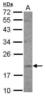 UFC1 Antibody (PA5-31895) in Western Blot