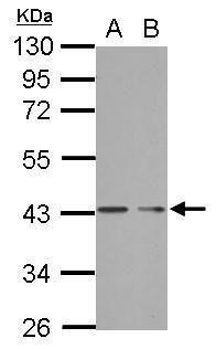 PHF7 Antibody (PA5-31897)