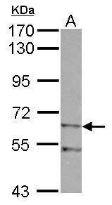 ZIM2 Antibody (PA5-31898) in Western Blot