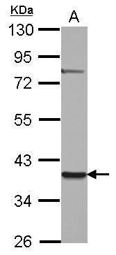 ZNF302 Antibody (PA5-31901) in Western Blot