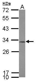 CCDC44 Antibody (PA5-31909)