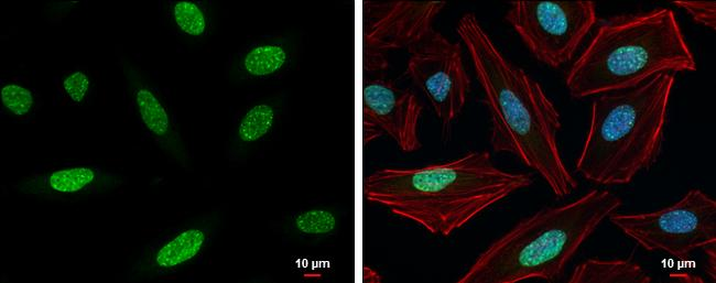 Tri-Methyl-Histone H3 (Lys9) Antibody (PA5-31910) in Immunofluorescence