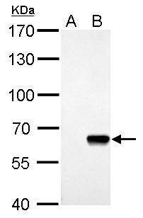 AKT Pan Antibody (PA5-31915) in Western Blot