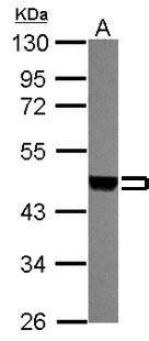 MEK1/MEK2 Antibody (PA5-31917) in Western Blot