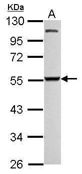 SMYD3 Antibody (PA5-31920) in Western Blot
