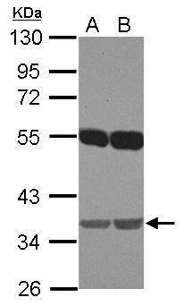 EMB Antibody (PA5-31922) in Western Blot