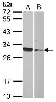 HMGB4 Antibody (PA5-31926) in Western Blot