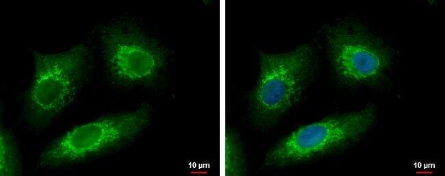 METTL6 Antibody (PA5-31929) in Immunofluorescence