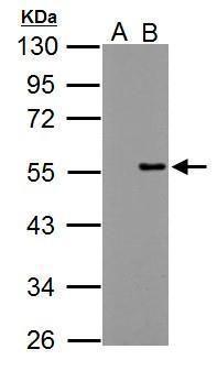 PPP4R2 Antibody (PA5-31932) in Western Blot
