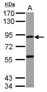 RASA4 Antibody (PA5-31934)