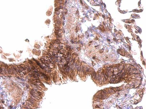 PABPC4 Antibody (PA5-31940)