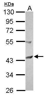 SCCPDH Antibody (PA5-31943) in Western Blot