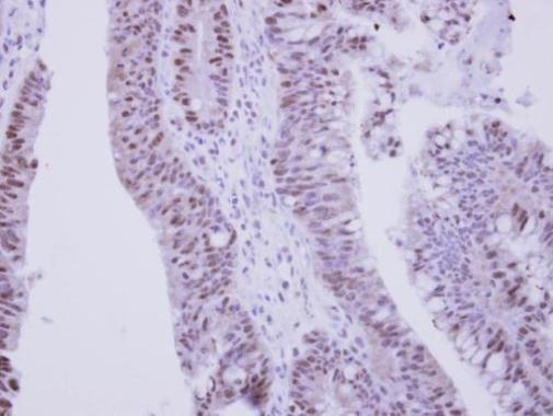 ZNF329 Antibody (PA5-31949) in Immunohistochemistry (Paraffin)