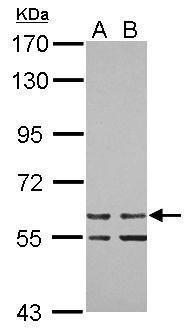 ZNF419 Antibody (PA5-31951) in Western Blot
