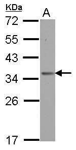 OTUD6B Antibody (PA5-31961) in Western Blot