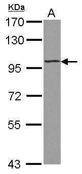 ST18 Antibody (PA5-31964)