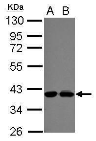 POLDIP3 Antibody (PA5-31966) in Western Blot