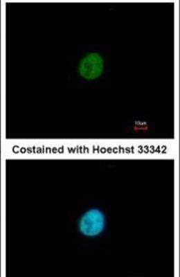SNAI3 Antibody (PA5-31970)