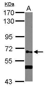 GALNT14 Antibody (PA5-31972) in Western Blot