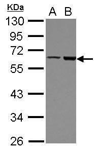 FRMD8 Antibody (PA5-31973) in Western Blot