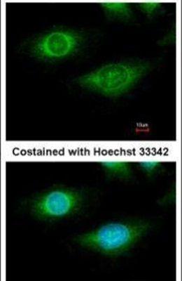 CYFIP1 Antibody (PA5-31984) in Immunofluorescence