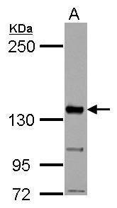 CYFIP1 Antibody (PA5-31984) in Western Blot