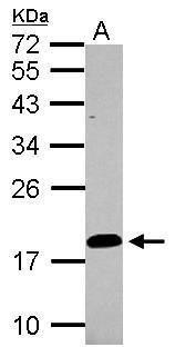 LCN15 Antibody (PA5-31997) in Western Blot
