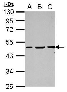 Vasculin Antibody (PA5-31999) in Western Blot