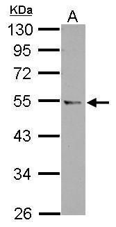 CCDC97 Antibody (PA5-32015) in Western Blot
