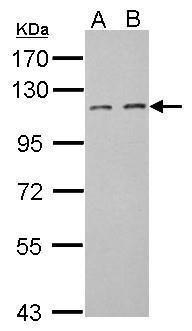 FILIP1L Antibody (PA5-32021) in Western Blot
