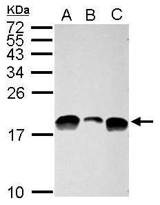 Acetyl-Histone H3 (Lys9, Lys14) Antibody (PA5-32028) in Western Blot