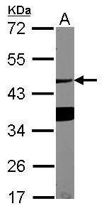 ASGR1 Antibody (PA5-32030)