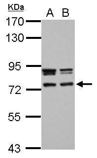 CCDC151 Antibody (PA5-32041) in Western Blot